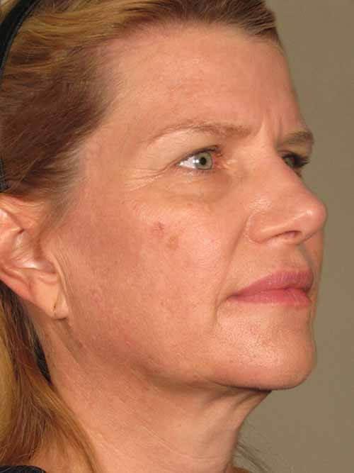 Ultherapy® Skin Tightening 1