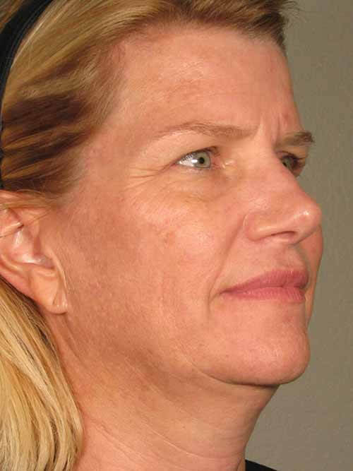 Ultherapy® Skin Tightening 2