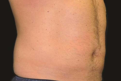 CoolSculpting® Non-Surgical Fat Reduction 6