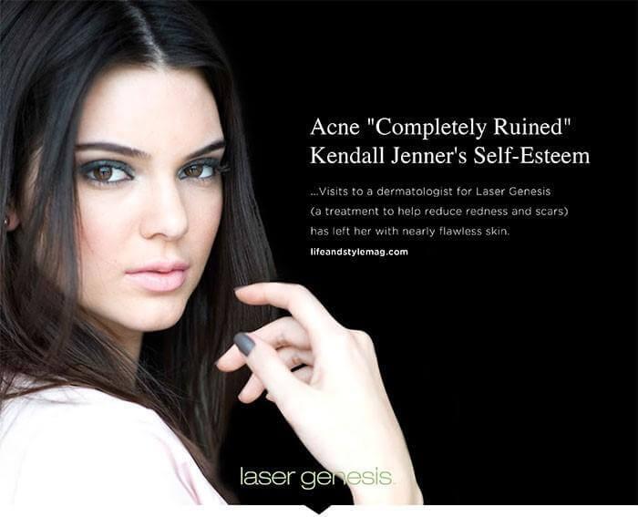 , Laser Genesis
