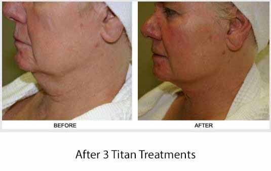 titan skin tightening results in marin county