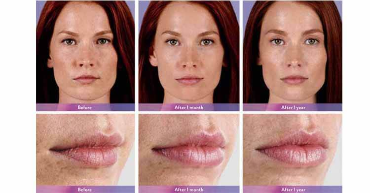Juvederm Ultra Lip Injection Results