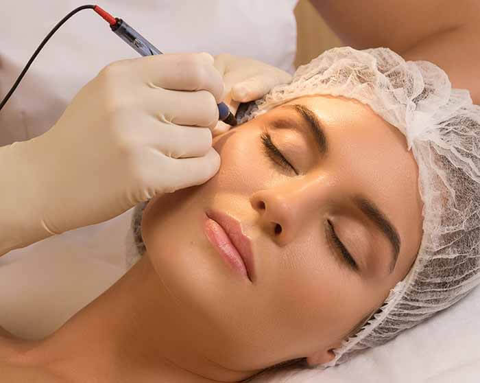 facial vein treatment marin county