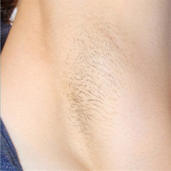 Laser Hair Removal 5