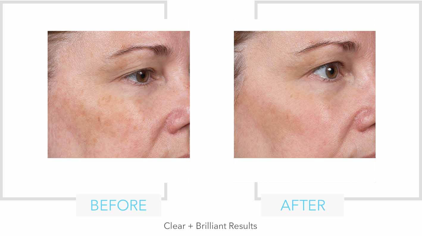 Clear + Brilliant Results