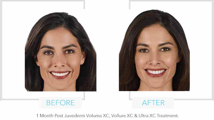 Juvederm Full Face Results