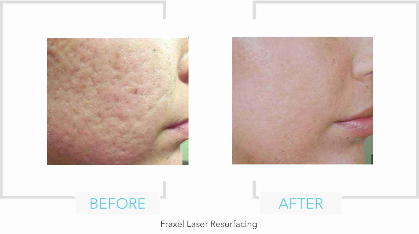 Fraxel Laser Resurfacing Results