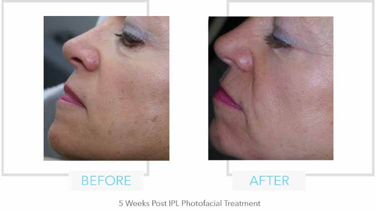 IPL Photofacial results