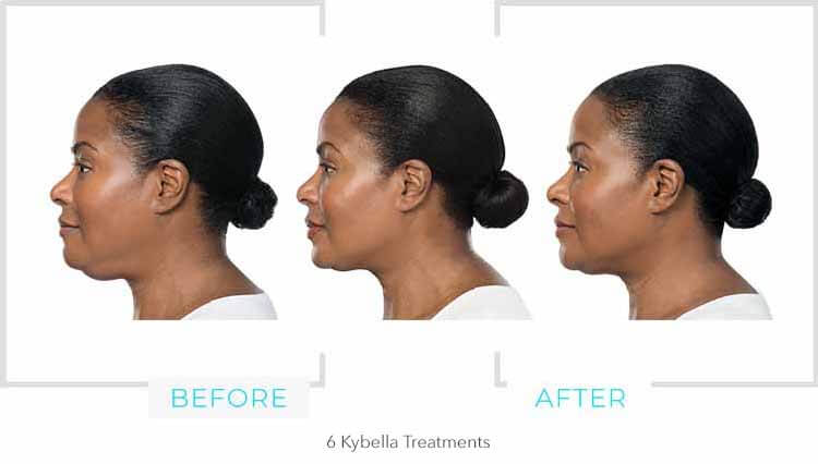 Kybella Chin Results 6 weeks