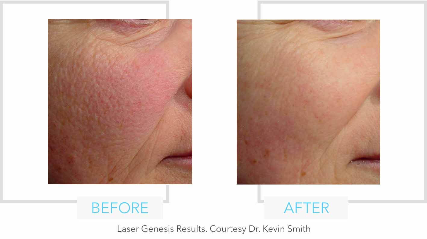 Laser Genesis Cheek Results