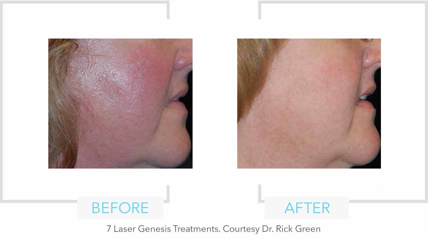 Laser Genesis Resurfacing Redness Results