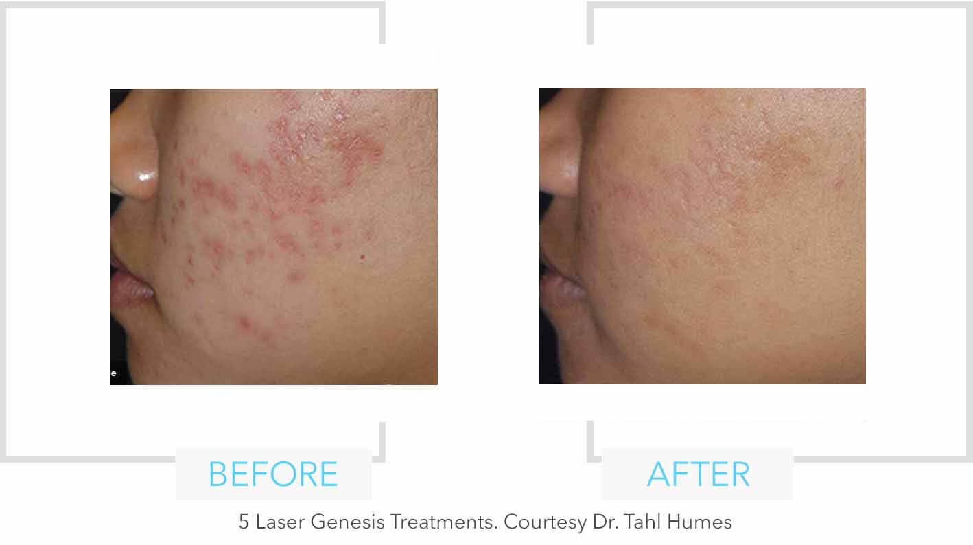 Laser Genesis Resurfacing Results