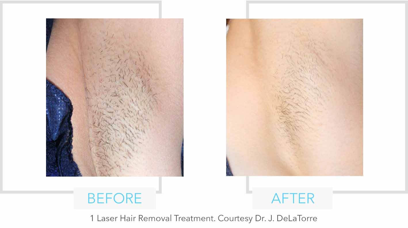 Armpit Laser Hair Removal Results