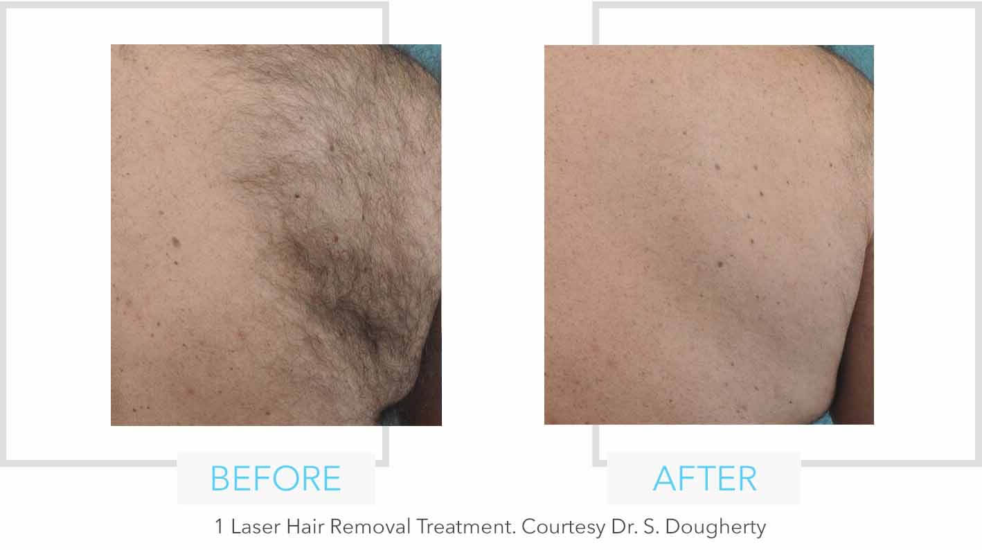 Back Laser Hair Removal Results