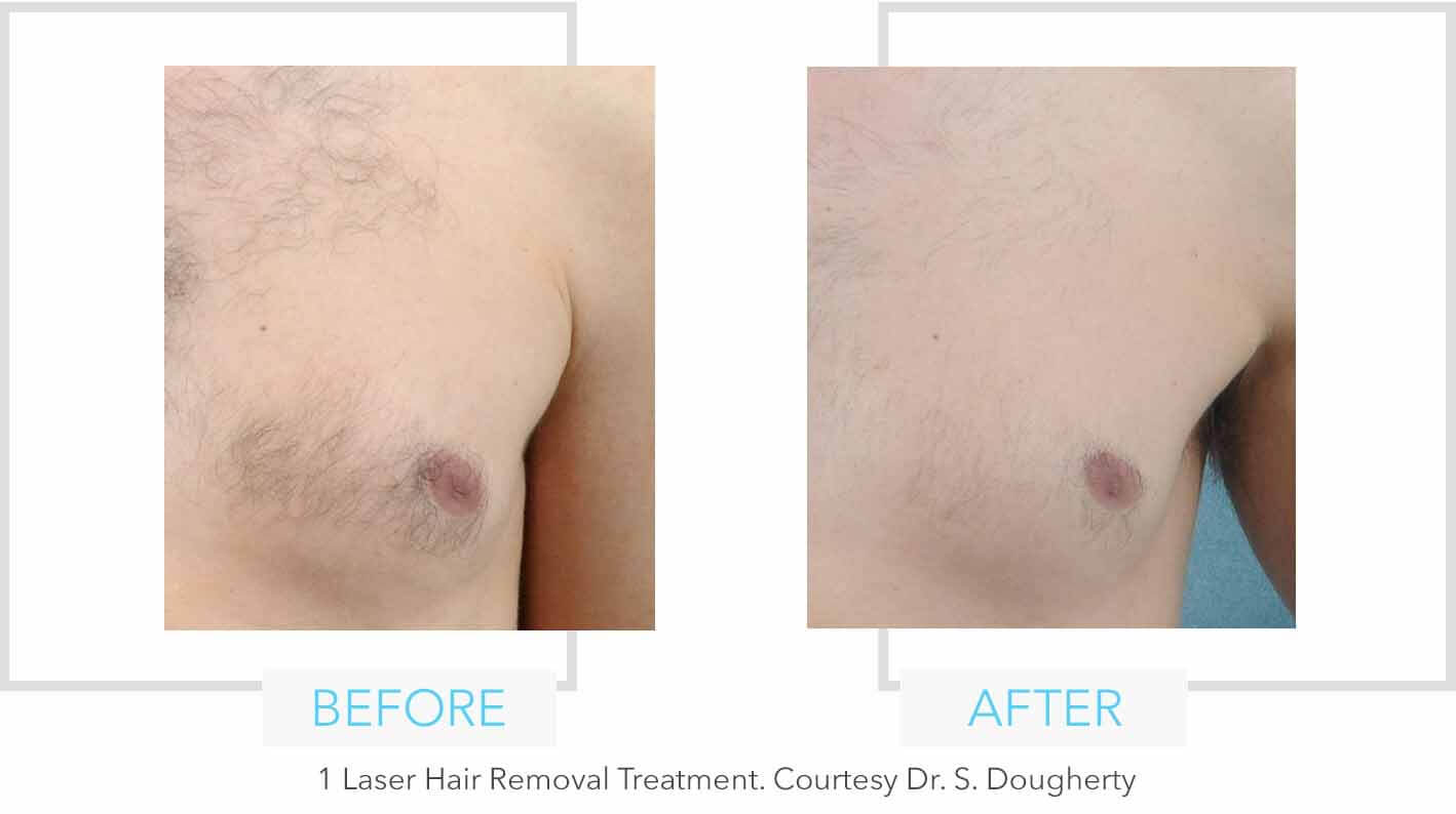 Chest Laser Hair Removal Results