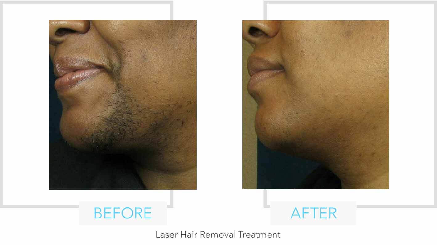 Facial Laser Hair Removal Results