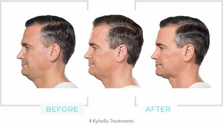 Kybella Chin Results 4 weeks