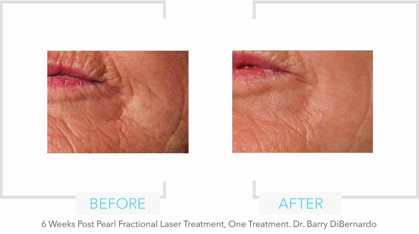 Pearl Fractional Laser Treatment On Cheek