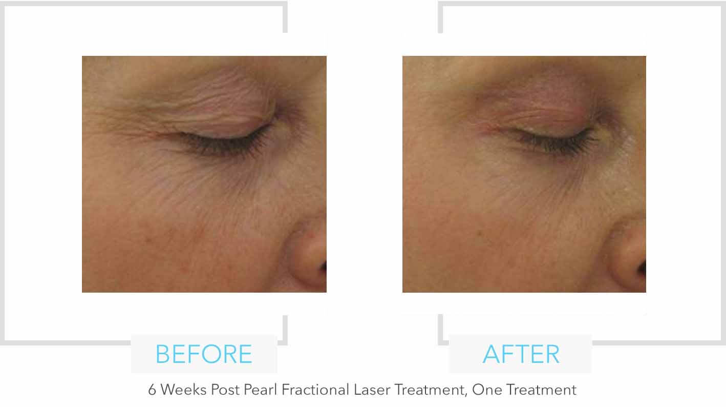 Pearl Fractional Laser Treatment Eye Results
