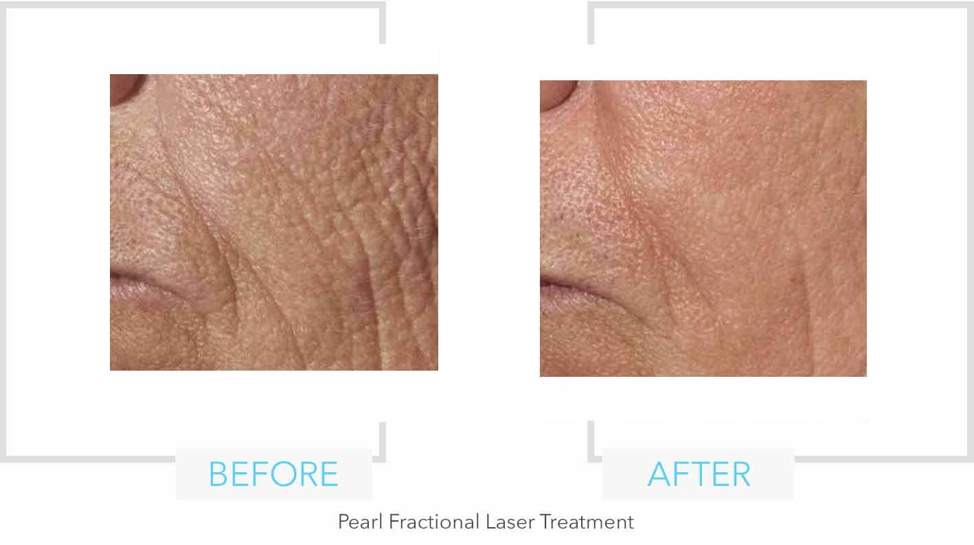 Pearl Fractional Laser Treatment Cheek Results