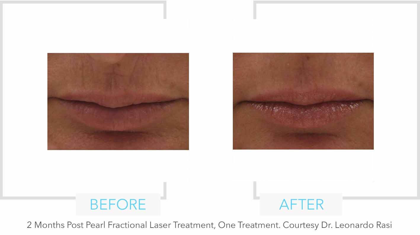 Pearl Fractional Laser Upper Lip Results