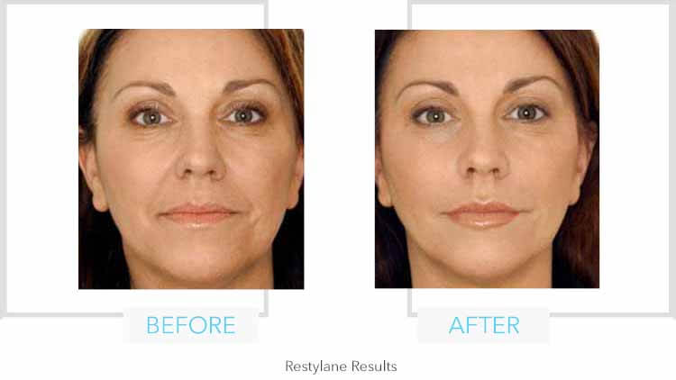 Restylane Full Face Results