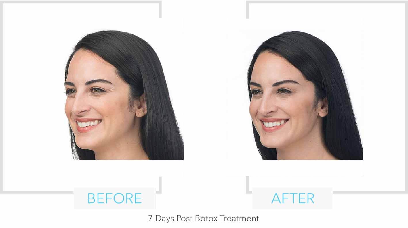 Botox Eye Results