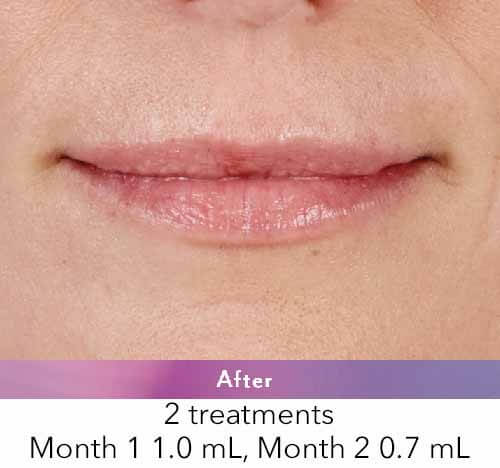 , Juvederm Lip Injections